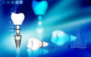 Get Smart About Implant Terminology