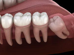 santa rosa impacted teeth