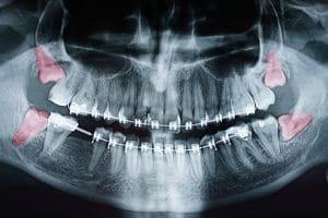 santa rosa wisdom tooth extraction