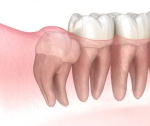 santa rosa impacted tooth