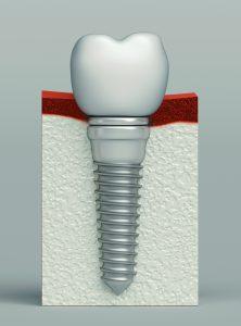 santa rosa dental implant