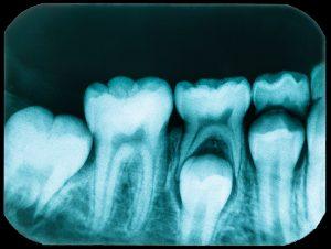 santa rosa oral pathology
