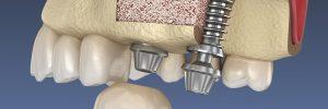 santa rosa bone grafting