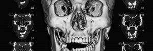 santa rosa facial trauma