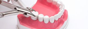 santa rosa tooth extraction