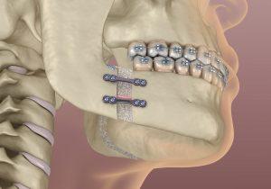 santa rosa jaw surgery
